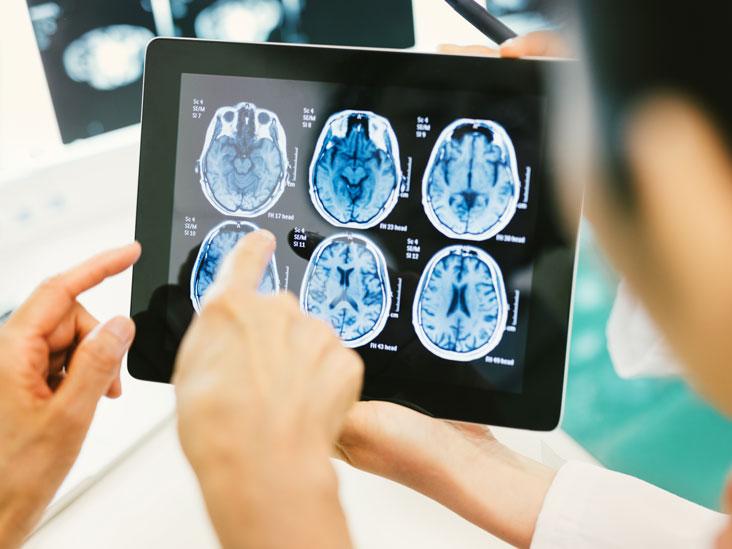 brain-tumor_thumb
